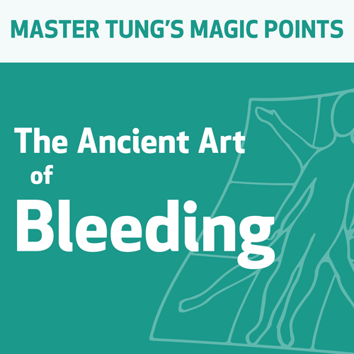 The Ancient Art of Bleeding
