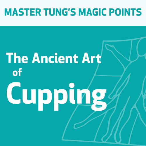 The Ancient Art of Cupping