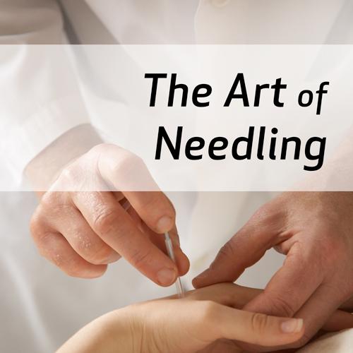 The Art of Needling